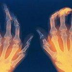 Artritas 1