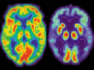 alzheimerio liga 2