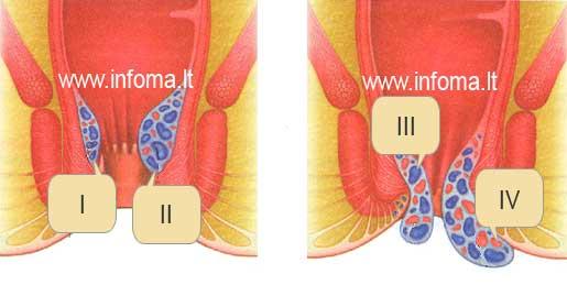 hemorojus hemorojaus laipsniai